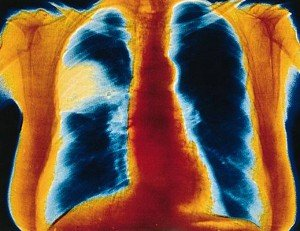 aaaaaaapneumoniethorax-300x231 Pneumonie - santé médecine - journée mondiale - Fête dans Economie